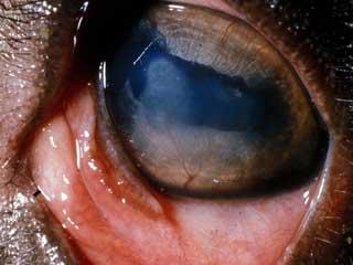 tissue lump inside eye