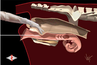 back massage diagram diagram of samsung plasma tv back reproduction management artificial insemination #15
